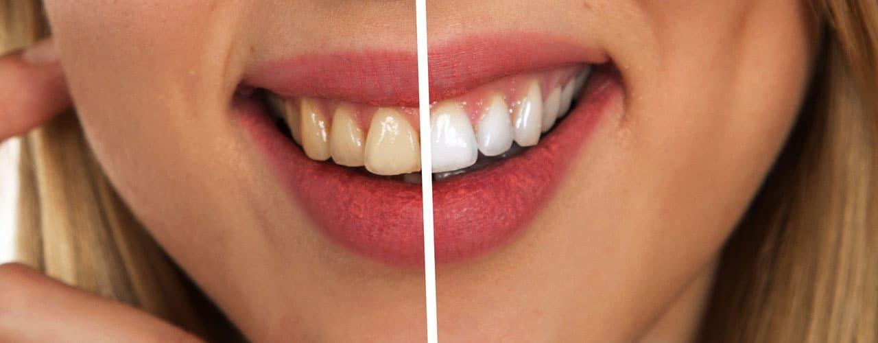 Bild: Der Vorher-Nachher-Vergleich von einer Bleaching-Behandlung