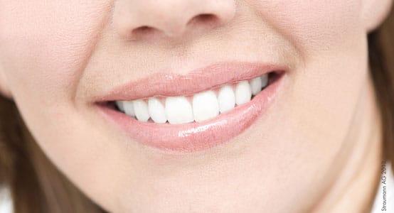 Bild: Bleaching der Zähne