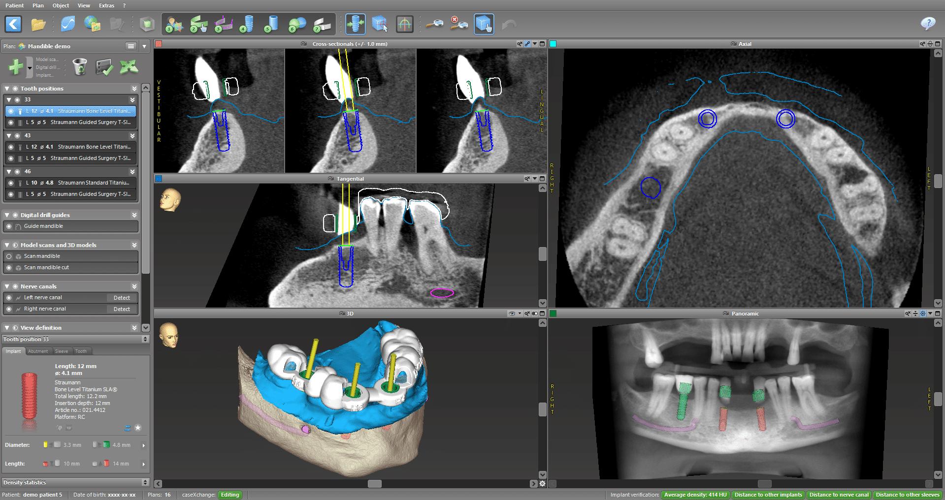 Bild: Moderner 3D-Scan während der Implantat-Planung in der Zahnarztpraxis Bierbaum & Kollegen